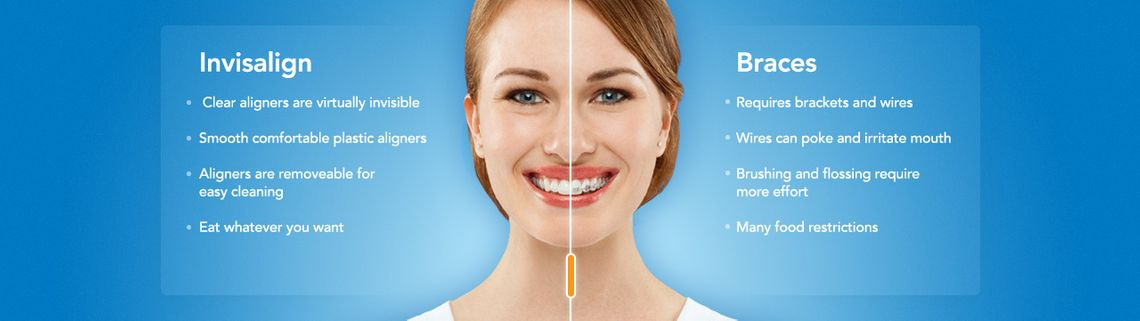 view of comparison chart of invisalign and braces